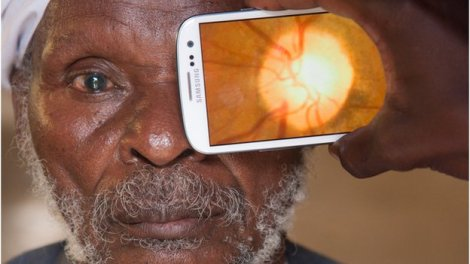 app optical - The back of the eye being scanned retina and check health optic nerve